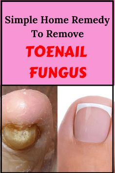 Watch This Video Mind Blowing Home Remedies for Toenail Fungus that Really Work Ideas. Astonishing Home Remedies for Toenail Fungus that Really Work Ideas. Home Remedies For Spiders, Home Remedies For Uti, Uti Remedies, Toenail Fungus Remedies, Toenail Fungus Treatment, Natural Health Remedies, Herbal Remedies, Fungus Toenails, Toe Fungus