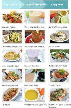 Dieta para despues de sleeve gastrico