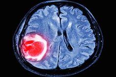 Vírus da zika pode ajudar a tratar câncer no cérebro, diz pesquisa minutobiomedicina.com.br