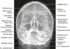 Radiology Schools, Radiology Student, Radiology Imaging, Medical Imaging, Brain Anatomy, Human Body Anatomy, Human Anatomy And Physiology, Medical Radiography, Radiologic Technology