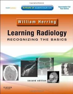 Bestseller Books Online Learning Radiology: Recognizing the Basics (With STUDENT CONSULT Online Access), 2e William Herring MD $48.65
