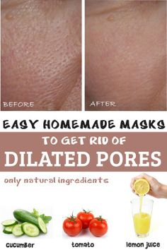 Three easy homemade masks for dilated pores
