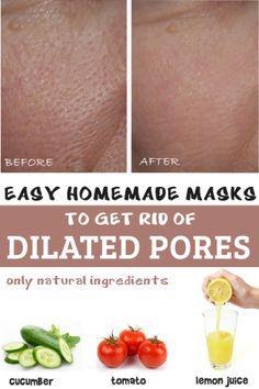 Three easy homemade masks for dilated pores