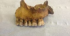 Siguiendo el rastro de la leche en los dientes humanos Un equipo de científicos presenta un nuevo método para identificar qué comunidades consumieron productos lácteos desde la Edad de Bronce, a partir de los restos de una proteína que queda en los dientes de los individuos. El análisis coincide con los mapas elaborados a partir de estudios genéticos.  Mandíbula humana recuperada en York (Reino Unido) data entre los siglos I y IV.
