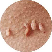 Odstráňte papilómy a bradavice po 1 domácom ošetrení | PapiSTOP® SK