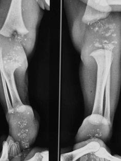 Chondrodysplasia punctata | Radiology Case | Radiopaedia.org