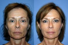Toning The Face And Neck: Face Yoga Regime For An Organic Facelift