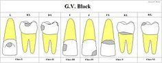 300px-GV-BLACK.JPG (300×117)