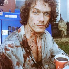 Dazed and bloody... Ep10 @samheughan