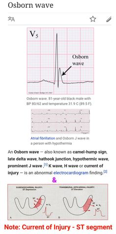 Subjective global assessment google search work pinterest current of injury st segment j wave fandeluxe Choice Image