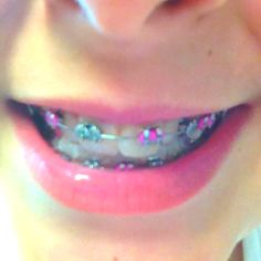 Another fun pastel braces look!<3