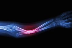 Marijuana Ingredient Can Help Heal Broken Bones, Study Says