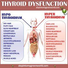 Thyroid Disfunction