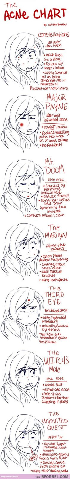 7 Types Of Acne This is really helpful but I also love the names. « 9greg