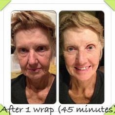 Before and After It Works Facial Wrap! michell.myitworks.com https://www.facebook.com/itworksbymichellnielsen