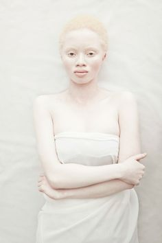 Albus explores the aesthetics of Albinism in contrast with the idealized perception of beauty.