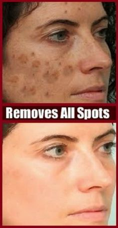 Home Remedies For Dark Spots remedies for dark spots on face. Beauty Care, Beauty Skin, Health And Beauty, Diy Beauty, Homemade Beauty, Beauty Ideas, Bleaching Your Skin, Beauty Hacks For Teens, Brown Spots On Face