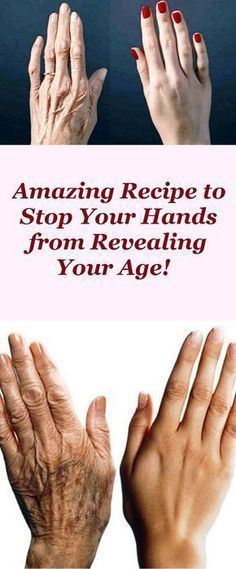 Beauty Remedies DIY anti-aging hand solutions - The aging process is a natural and normal process manifested with the first obvious signs reflected on our skin like wrinkles, enlarged pores, sagging skin on our face and neck, . Beauty Skin, Health And Beauty, Beauty Care, Hair Beauty, Beauty Secrets, Beauty Hacks, Beauty Ideas, Get Rid Of Blackheads, Hand Care