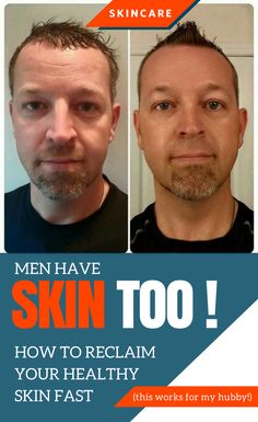 How to get young acting skin fast (no more razor bumps) this works for my hubs!