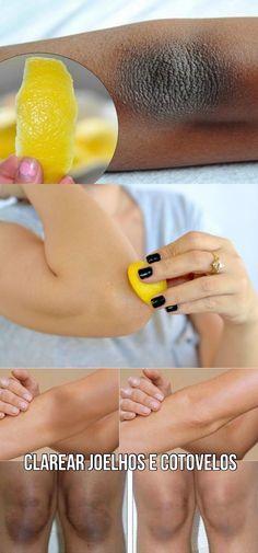 Os 4 Remédios Para Remover a Pele Escura nos Cotovelos #remedios #pele escura #cotuvelo