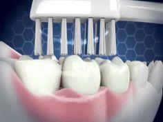 """Viele Anbieter von Zahnreinigungs-Produkten haben ja mal mit Wörtern wie """"Ultraschall"""", z.B. im Fernsehen geworben. Leider handelt es sich bei diesen Produkten aber nicht um richtigen Ultraschall, sondern um Schall-Zahnbürsten.  Zwischen Schall- und Ultraschall-Zahnreinigung gibt es aber erhebliche Unterschiede...  Dieses Video präsentiert Ihnen die Gegenwart und Zukunft der Zahnreinung, nämlich ECHTE Ultraschall-Zahnreinigung! Weitere Infos zum Produkt: http://www.ultraschall-wirkung.de"""