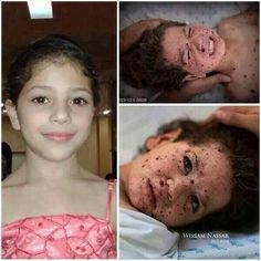 White Phosphorus attack victim of terrorist Israel Heiliges Land, Que Horror, Child Of The Universe, Pray For Peace, Bless The Child, Crime, Gaza Strip, Sad Pictures, Palestine