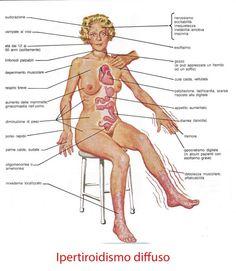 hashimoto tiroiditis morbo basedow síntomas de diabetes