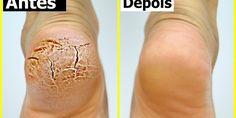 Neste post vamos dizer-lhe como você pode curar calcanhares rachados super rápido e em apenas alguns