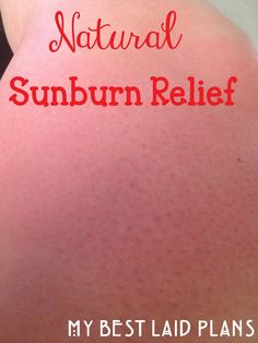 Never let a sunburn leave you reeling in pain, this 10 everyday items are best for sunburn relief, there are natural remedies for sunburn that . Natural Sunburn Relief, Natural Remedies For Sunburn, Sunburn Remedies, Home Remedies, Health And Beauty Tips, Health Tips, Health Care, Homemade Beauty