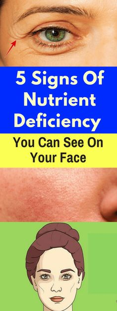 Here Are 5 Signs Of Nutrient Deficiency You Can See On Your Face! Health Clear Skin Health Remedies Health Tips Health For women Health Natural Health Tips Fast Weight Loss, Weight Loss Plans, How To Lose Weight Fast, Losing Weight, Weight Loss Protein Shakes, Weight Loss Smoothies, 30 Tag, Software, Endocrine Disruptors