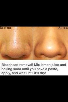 Blackhead removal naturally. Lemon juice baking soda