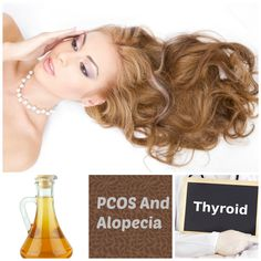 PCOS and Alopecia often go hand in hand. Here are some thins you can do to manage your alopecia in particular. Polycystic Ovarian Syndrome, Ovarian Cyst, Pcos Hair Loss, Make Hair Thicker, Supplements For Hair Loss, Pcos Infertility, Pcos Symptoms, Pcos Diet, Health