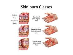 Burn Injury Nursing Management Nursing Care Plans Nursing Diagnosis Causes Nursing Interventions Treatment Medical Management Phases Health Remedies, Home Remedies, Herbal Remedies, Natural Cures, Natural Healing, Natural Skin, Health And Wellness, Health Tips, Health Recipes