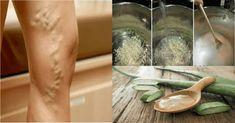 Se você tem varizes nas pernas é porque ainda não conheceu essas 2 incríveis receitas!