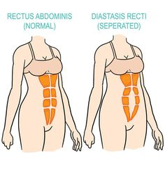 5 Exercises to Gradually Re-Strengthen Your Core after Giving Birth - Diastasis Recti - Postpartum - Childbirth - Post Baby Body - Bellefit.