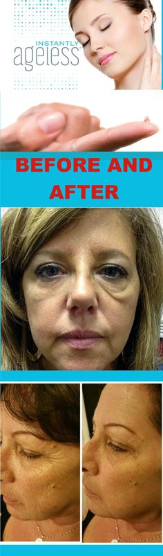 Where Can I Buy Jeunesse Instantly Ageless Eye Cream ? Come to Our Official Website and You Could Buy Best Jeunesse Instantly Ageless Anti Aging Eye Cream, Latina, Ageless Cream, Anti Itch Cream, Clear Pores, Best Anti Aging Creams, At Home Face Mask, Under Eye Bags, New Skin, Sensitive Skin