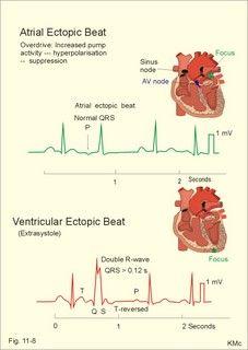 Atrial and ventricular ectopic beats
