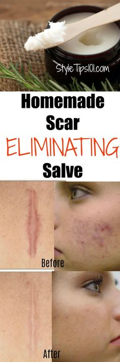 Homemade Scar Removing Salve