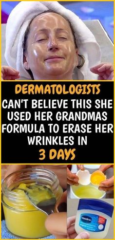 DERMATOLOGISTS CAN'T BELIEVE THIS SHE USED HER GRANDMAS FORMULA TO ERASE HER WRINKLES IN 3 DAYS - FAMILY HEALTHY