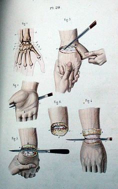 Surgery. Pl. 29. Bernard, Claude  Davesne. Illustrated manual of operative surgery and surgical anatomy, 1846-1861.