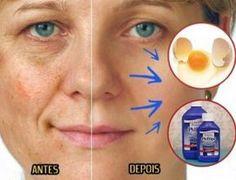 Milagrosa máscara caseira para tirar manchas do rosto e da pele - Dicas e Truques Online