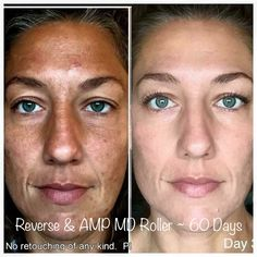 WOW!!! This is Ashley and her 45 day results with Rodan + Fields REVERSE and AMP MD roller! Message me to get started on your journey to great skin!