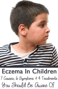 Eczema In Children - 7 Causes, 6 Symptoms & 4 Treatments You Should Be Aware Of