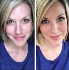 Younique foundation before and after   To order contact me at: Trishaegbert@yahoo.com FB: Facebook.com/TrishaDee Twitter: @SunnyTrisha Youniqueproducts.com/TrishaDee   If you're interested in joining my #GlamGirlSquad and becoming a Younique Presenter, empowering other women and making money!! Contact me