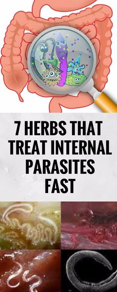 7 HERBS THAT TREAT INTERNAL PARASITES FAST