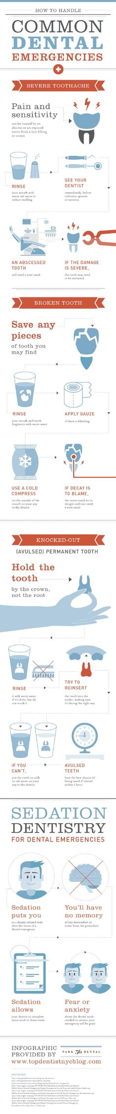 Don't ignore that painful tooth! Tooth pain can be caused by an abscess which requires immediate dental treatment. Left untreated an abscess can affect your overall health. Find out everything you need to know about your dental emergency in this infograph Humor Dental, Dental Facts, Dental Hygiene, Dental Health, Teeth Health, Oral Health, Dental World, Dental Life, Dental Emergency