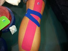KT Tape for Hamstring and politeus pain