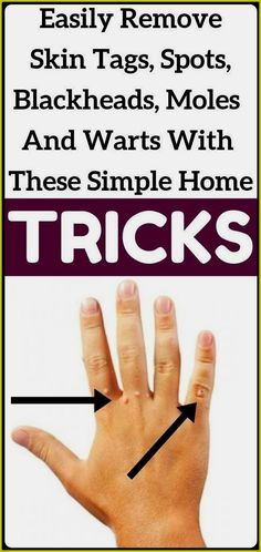 Skin Tag Treatment, Pineapple Health Benefits, Warts On Face, Get Rid Of Warts, Remove Warts, Skin Tag Removal, Improve Mental Health, Natural Home Remedies, Herbal Remedies
