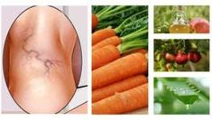 Natural Remedies for Varicose Veins - Everyday Remedy Varicose Vein Remedy, Varicose Veins Treatment, Aloe Vera, Natural Health Remedies, Natural Cures, Salud Natural, Flu Remedies, Hygiene, Natural Treatments