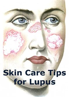 Lupus often causes rashes and other undesirable skin irritations. Those skin problems can be reduced by following a few common sense precautions and following your doctor's instructions.